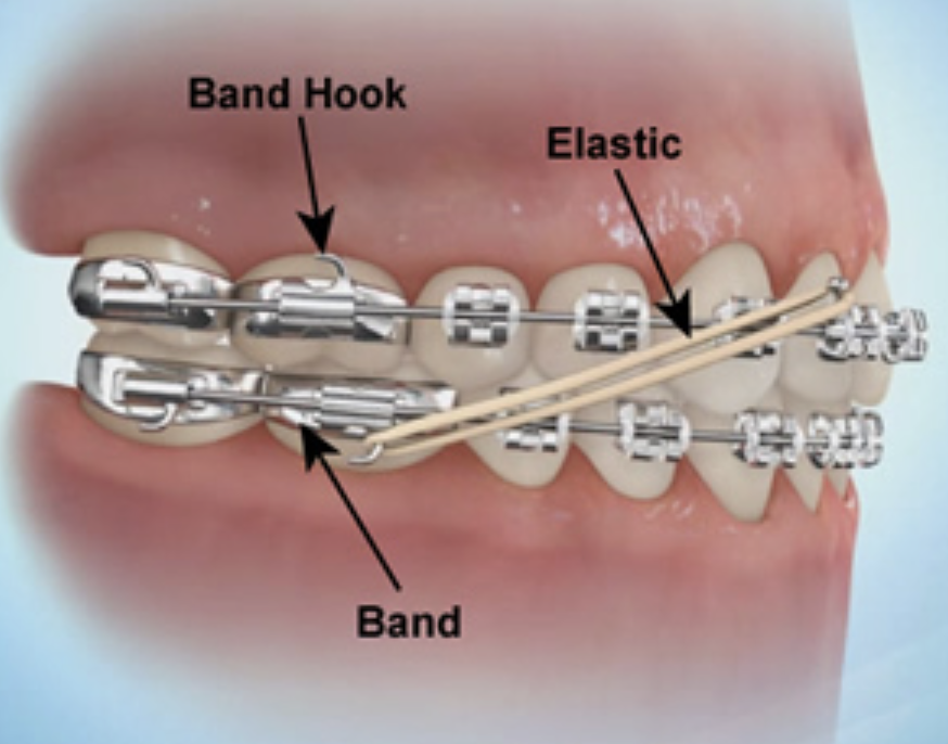 What Are Elastics Rubberbands And How Do They Help With My Braces Braces For U
